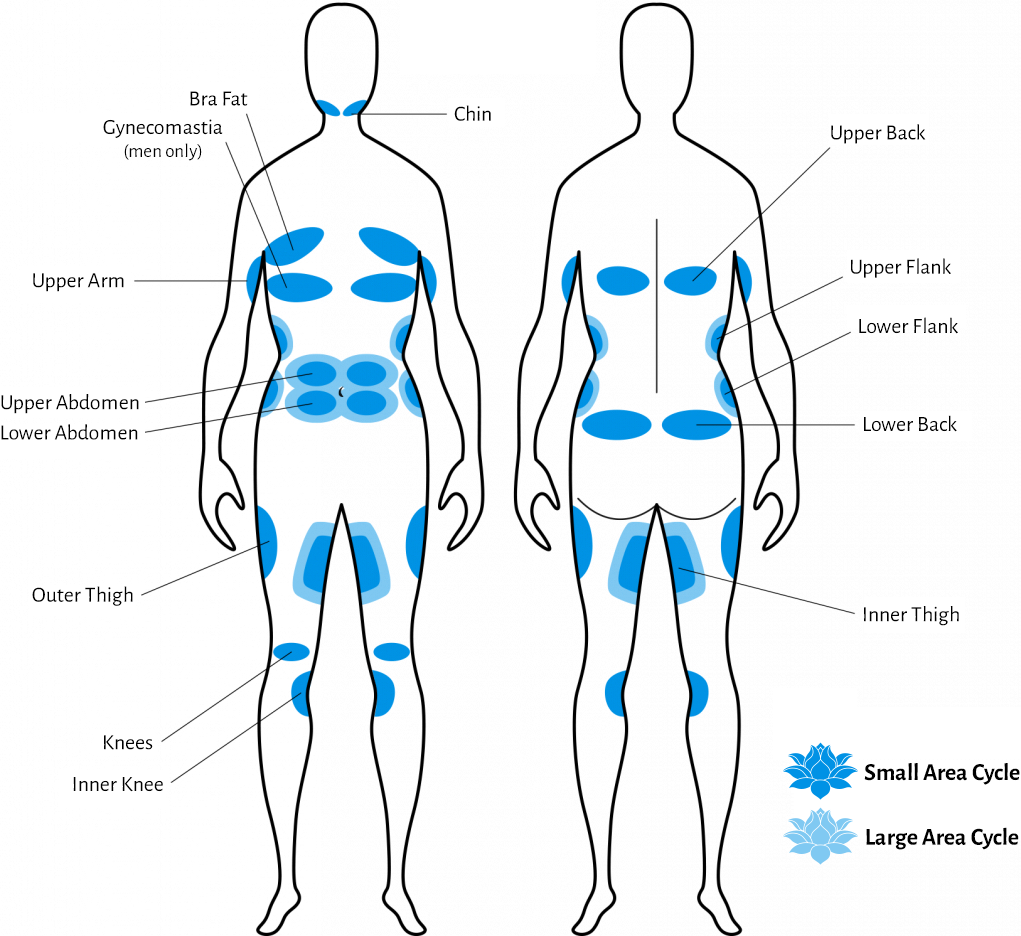 CoolSculpting target areas