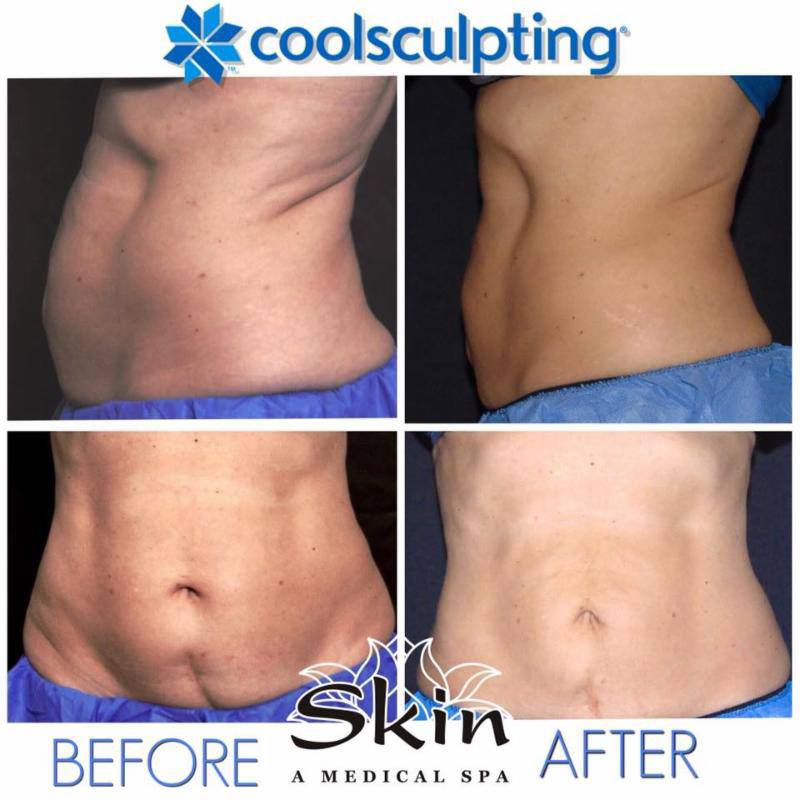 Coolsculpting before and after woman in 50's