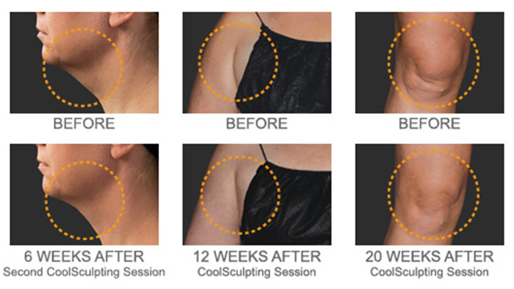 Coolsculpting before and after woman chin, arm and knee