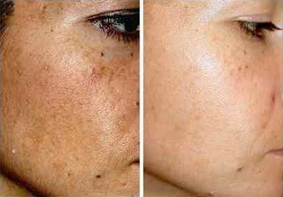 IPL before and after melasma