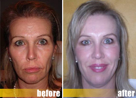 Jimmie liquid facelift before and after