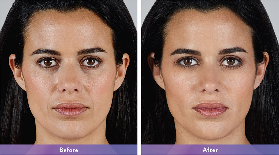 Juvederm before and after - Karla