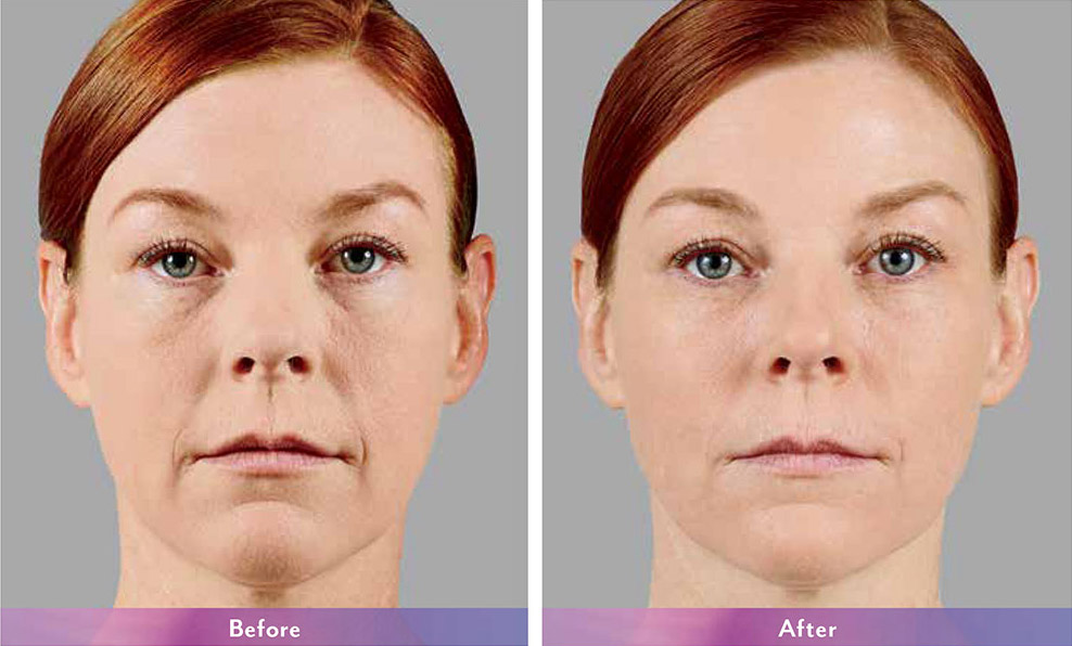 Juvederm before and after - Mary Ann
