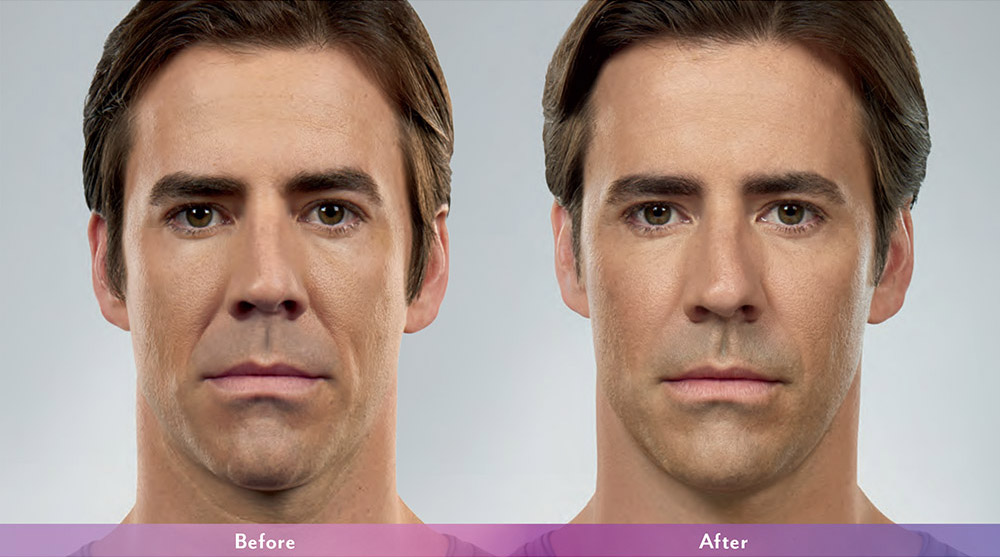 Juvederm before and after - Thomas
