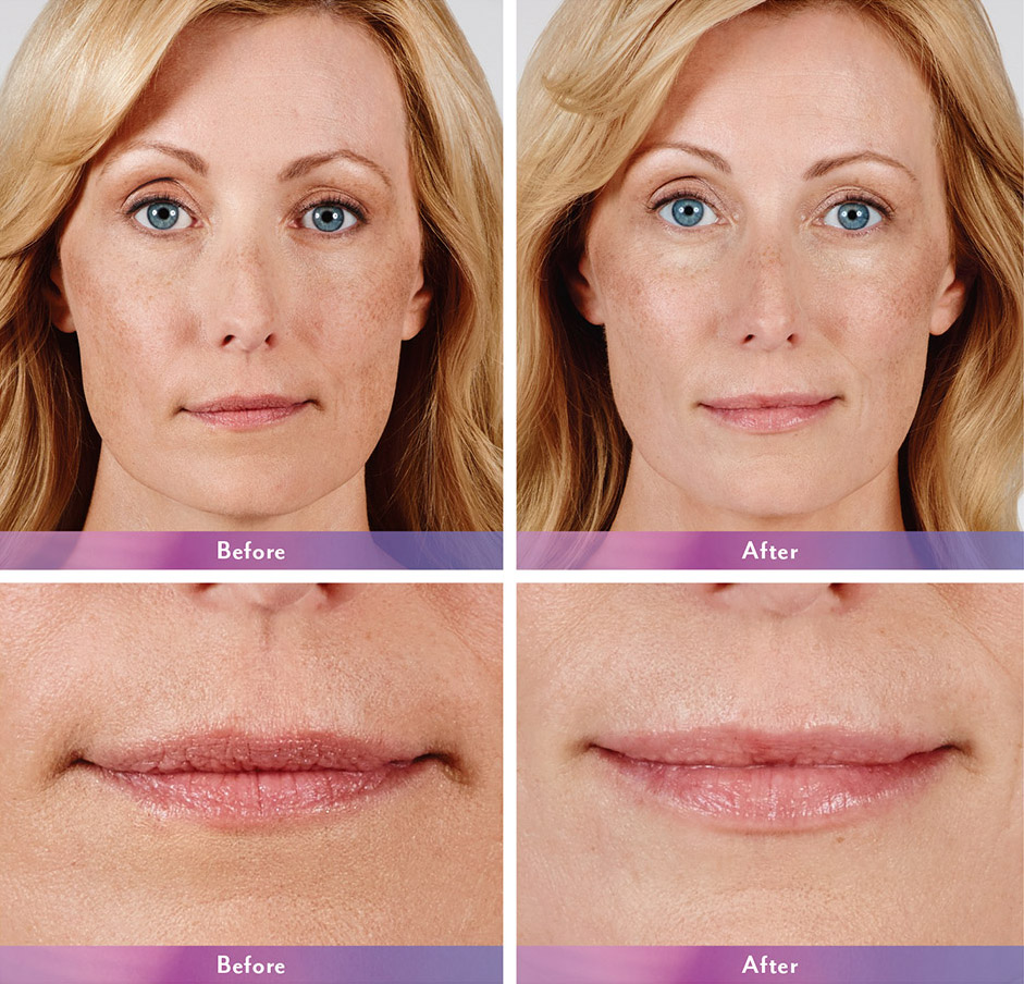 Juvederm before and after - Alicia