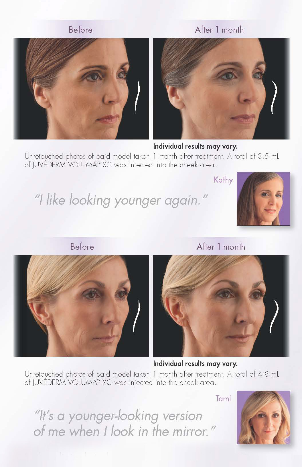 Juvederm Voluma XC before and after testimonials