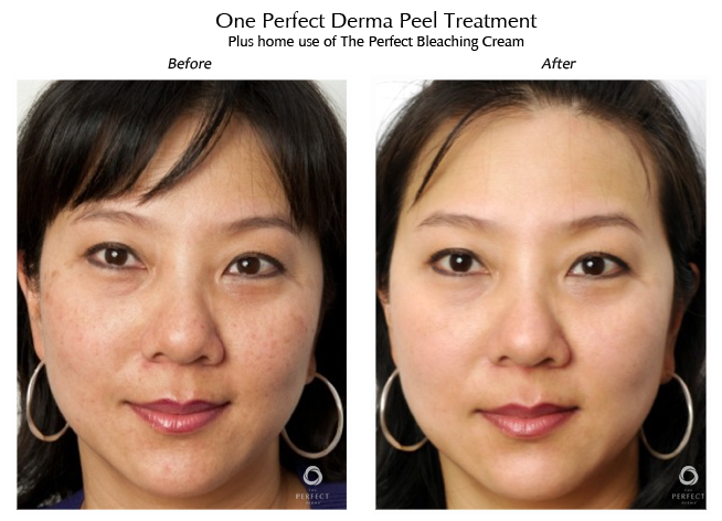 Chemical Peels Skin A Medical Spa Located Downtown Norfolk