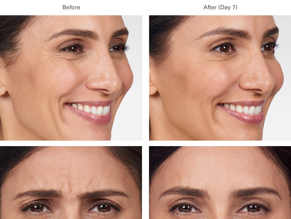 Botox before and after female 2