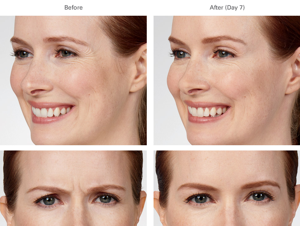 Botox before and after female 3