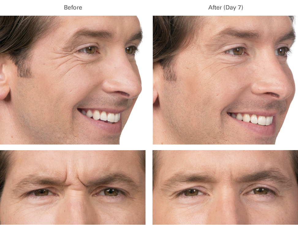 Botox before and after male 1
