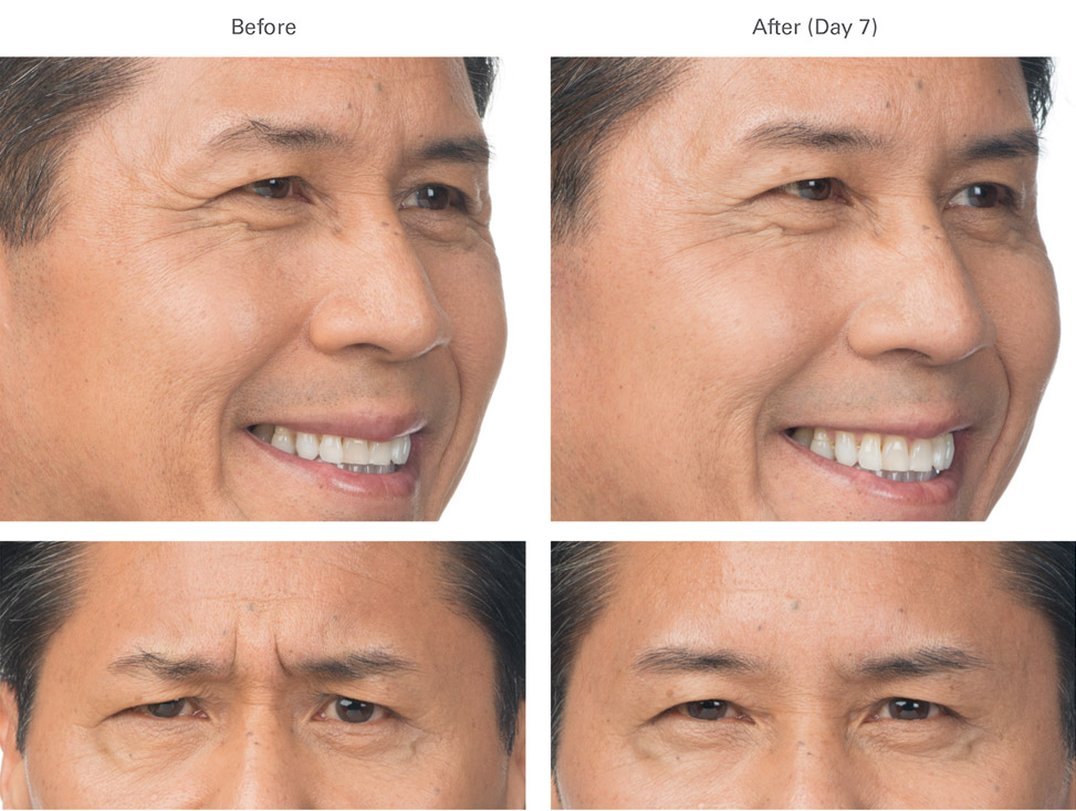 Botox before and after male 2