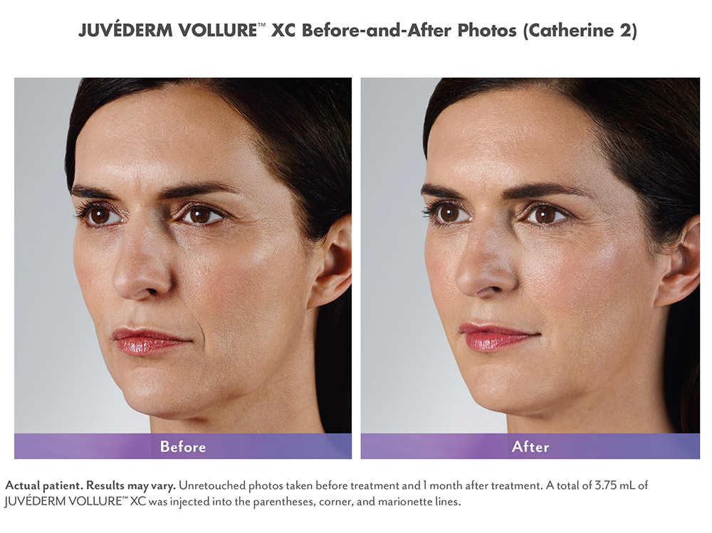 Juvederm before and after - Catherine