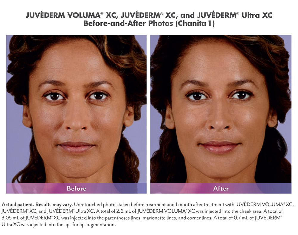 Juvederm before and after - Chanita