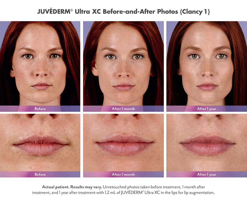 Juvederm before and after - Clancy
