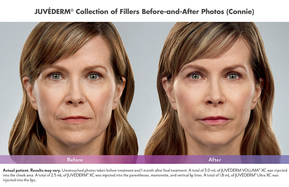 Juvederm before and after - Connie