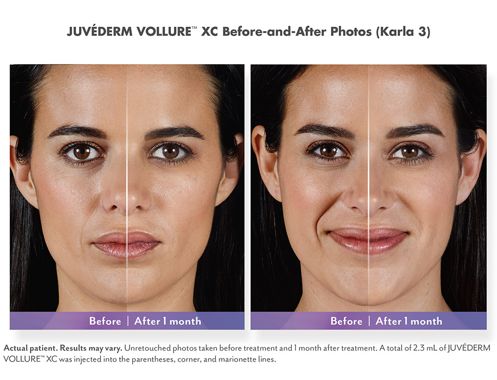 Juvederm before and after - Karla 2