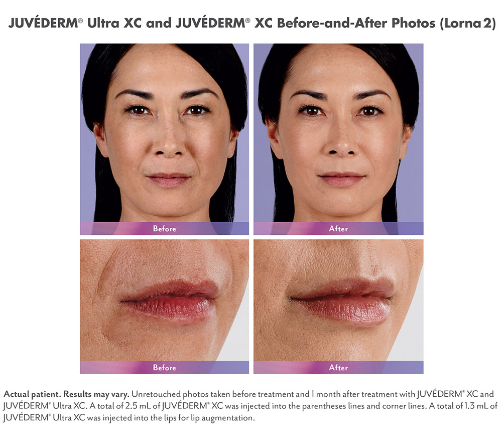 Juvederm before and after - Lorna