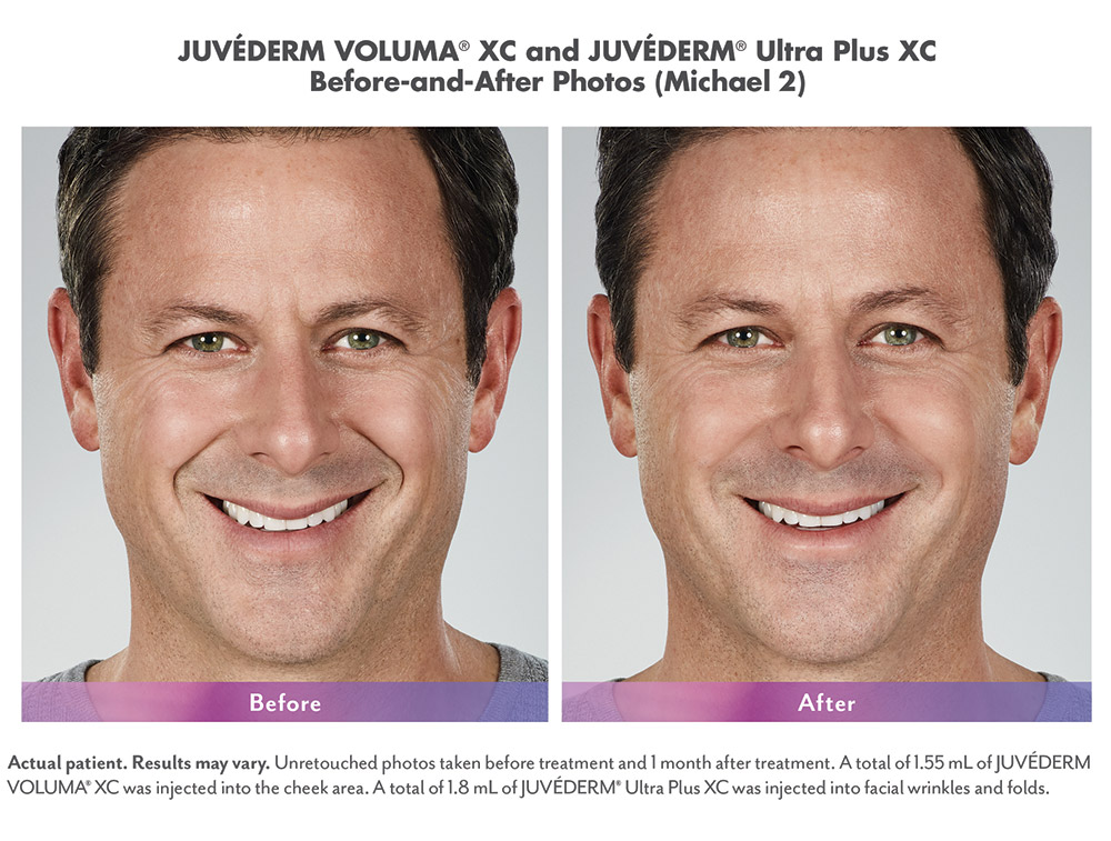 Juvederm before and after - Michael