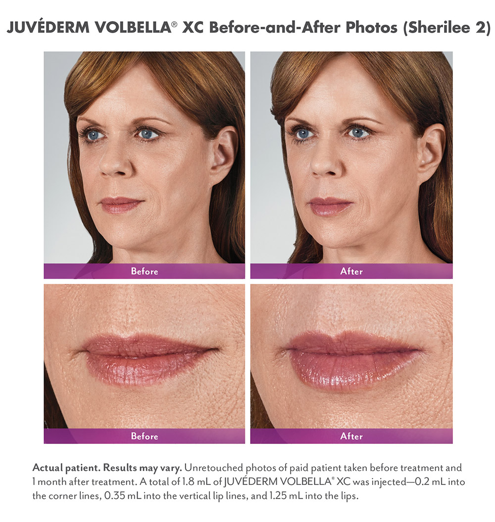 Juvederm before and after - Sherilee