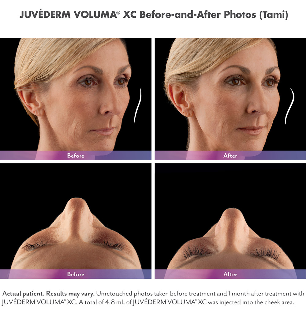 Juvederm before and after - Tami