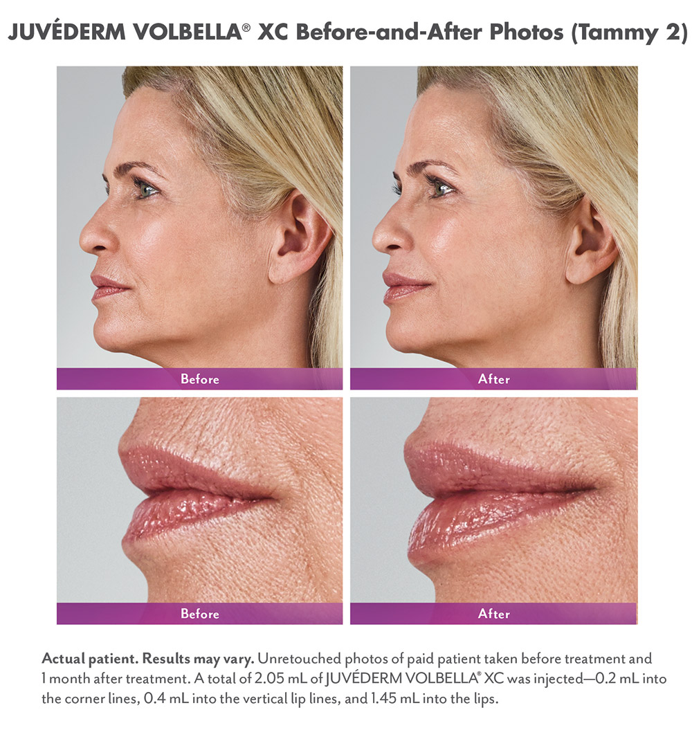 Juvederm before and after - Tammy 2