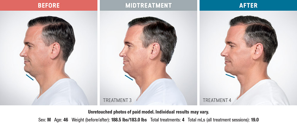 Kybella before and after - Andy