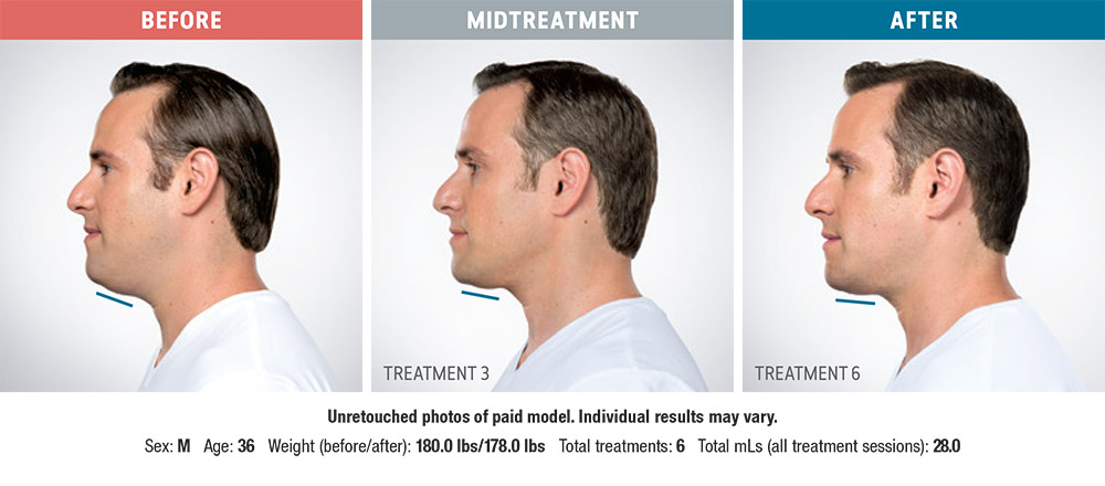 Kybella before and after - Jason