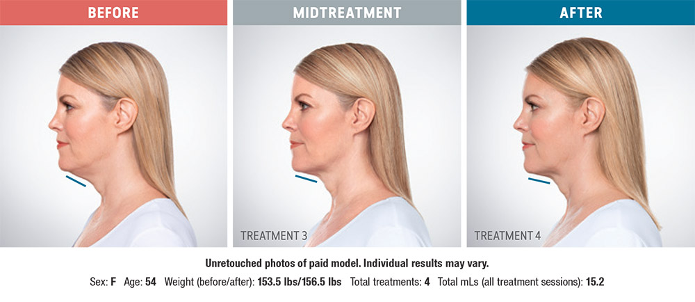 Kybella before and after - Lisa